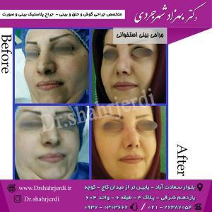 عمل جراحی بینی - دکتر شهرجردی (24)