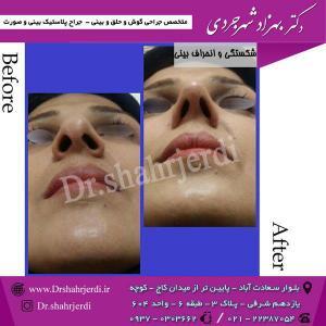 عمل جراحی بینی - دکتر شهرجردی (25)
