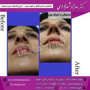 عمل جراحی بینی - دکتر شهرجردی (26)