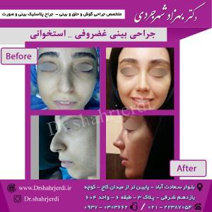 عمل جراحی بینی - دکتر شهرجردی (29)
