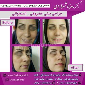 عمل جراحی بینی - دکتر شهرجردی (30)
