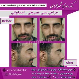 عمل جراحی بینی - دکتر شهرجردی (31)