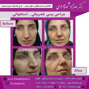 عمل جراحی بینی - دکتر شهرجردی (32)