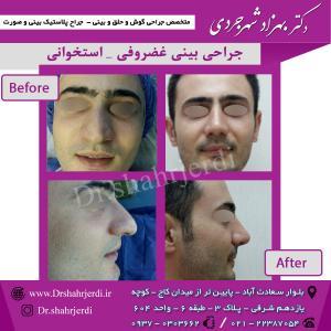 عمل جراحی بینی - دکتر شهرجردی (33)