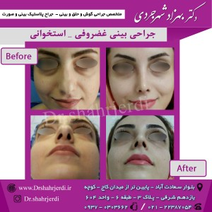 عمل جراحی بینی - دکتر شهرجردی (34)