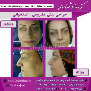 عمل جراحی بینی - دکتر شهرجردی (35)