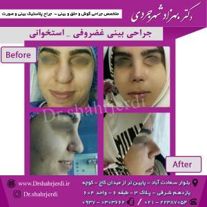 عمل جراحی بینی - دکتر شهرجردی (36)