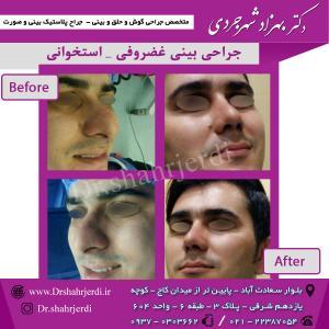 عمل جراحی بینی - دکتر شهرجردی (37)