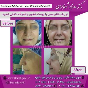 عمل جراحی بینی - دکتر شهرجردی (38)