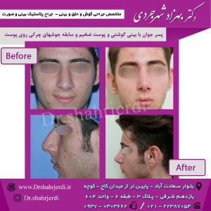 عمل جراحی بینی - دکتر شهرجردی (39)
