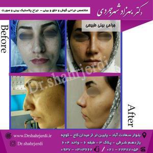 عمل جراحی بینی - دکتر شهرجردی (5)