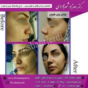 عمل جراحی بینی - دکتر شهرجردی (7)