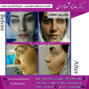 عمل جراحی بینی - دکتر شهرجردی (8)
